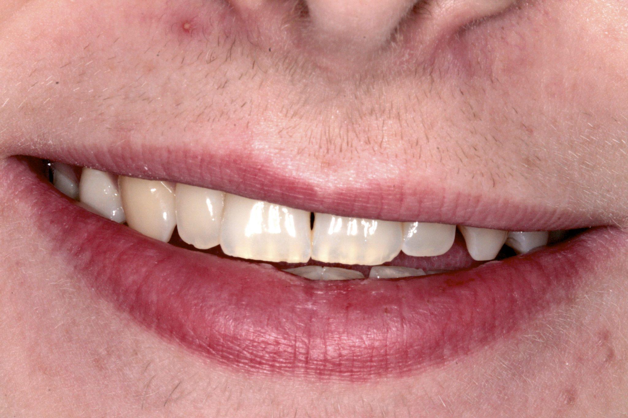 1. Pre Op Smile Copy